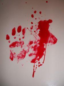 Fobia sangre-blog-un-pedacito-de-psicologia